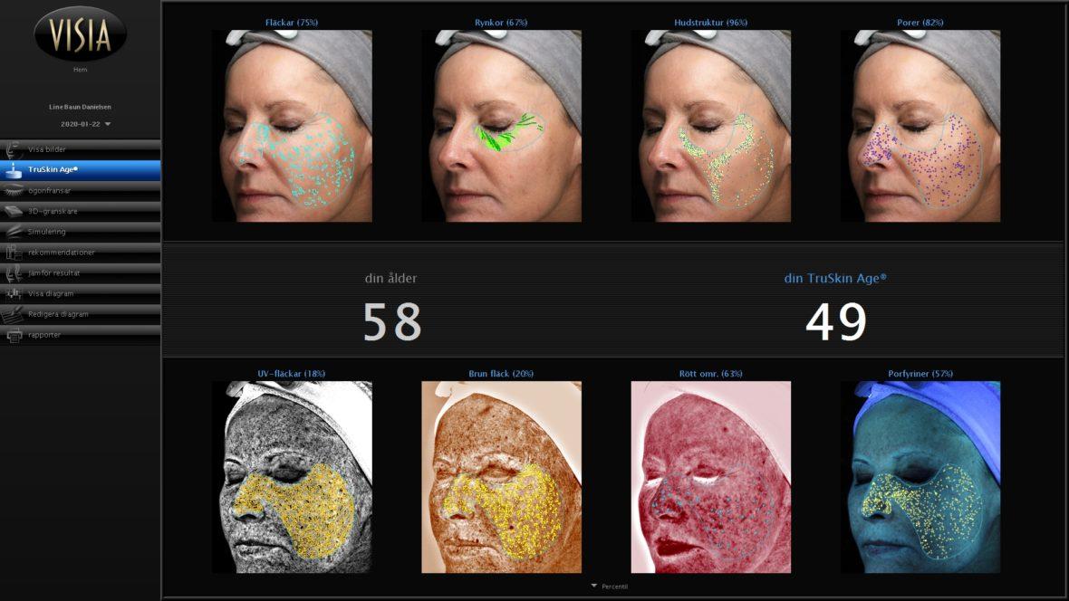 Yngre hud på 15 måneder